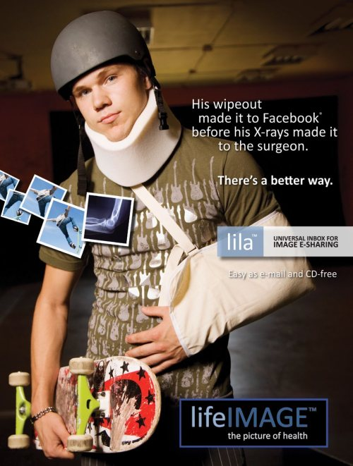 'His wipeout made it to Facebook before the X-rays made it to the surgeon.'